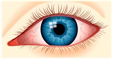 Ayurved Opthalmology Treatments